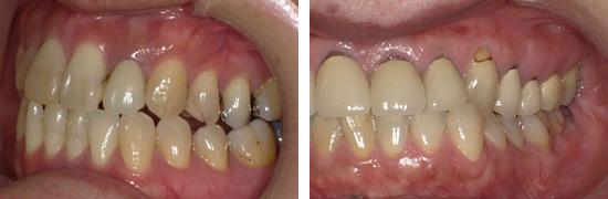 歯と同じ色のつめもの(レジン、コンポジットレジン、CR)の黒い線