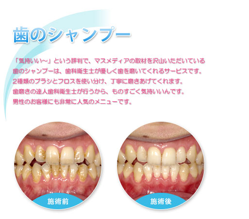 10分間の歯のシャンプー